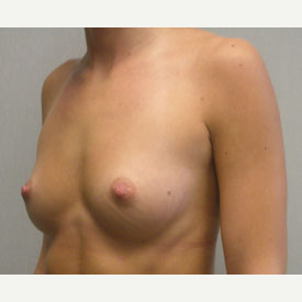 Breast Augmentation before 3681040