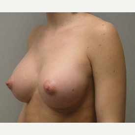 Breast Augmentation after 3681040