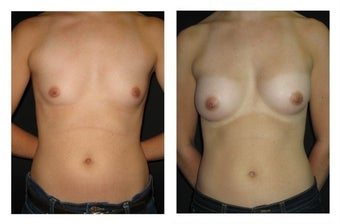 Breast Augmentation before 589821