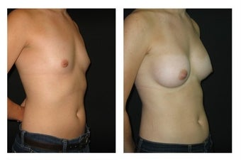 Breast Augmentation after 589821