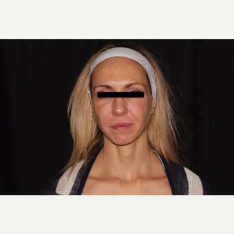 35-44 year old woman treated with Exilis before 3569595