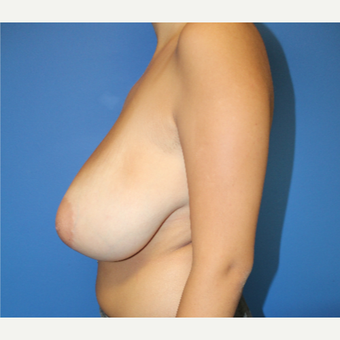 18-24 year old woman treated with Breast Lift before 3402054