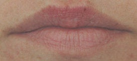 Lip enhancement with Restylane after 93352
