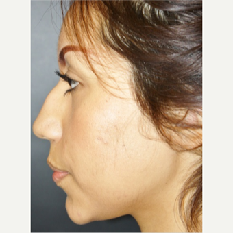 25-34 year old woman treated with Rhinoplasty before 3055530