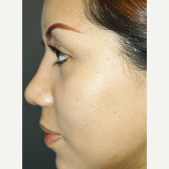 25-34 year old woman treated with Rhinoplasty after 3055530