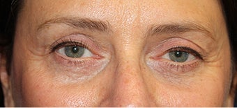 55-64 year old woman treated with Eyelid Surgery after 1698879
