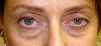 55-64 year old woman treated with Eyelid Surgery before 1698879