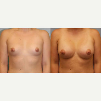 25-34 year old woman treated with Breast Augmentation before 3418477