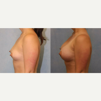 25-34 year old woman treated with Breast Augmentation after 3418477
