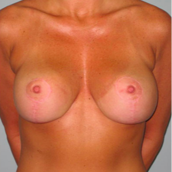 33 year old woman treated with Breast Lift after 3467387