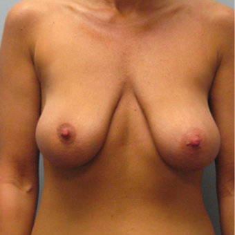 33 year old woman treated with Breast Lift before 3467387