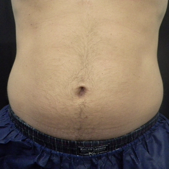 35-44 year old man treated with CoolSculpting after 3140239