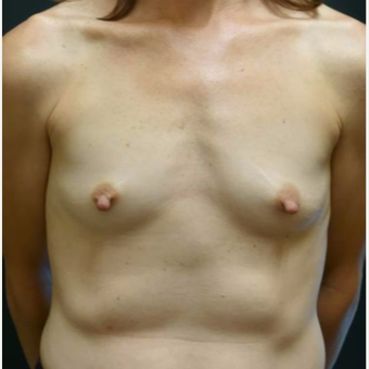 35-44 year old woman treated with Breast Implants before 3460303