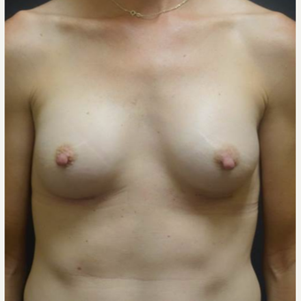 35-44 year old woman treated with Breast Implants after 3460303