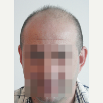 44 years old man treated with FUE Hair Transplant before 3069592