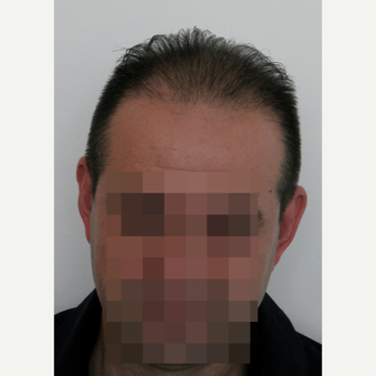 44 years old man treated with FUE Hair Transplant after 3069592