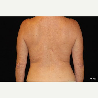 45-54 year old woman treated with SculpSure after 3501847