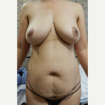 35-44 year old woman treated with Mommy Makeover before 3484410