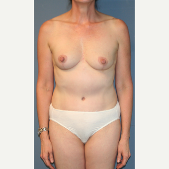55-64 year old woman treated with Breast Lift after 3454379