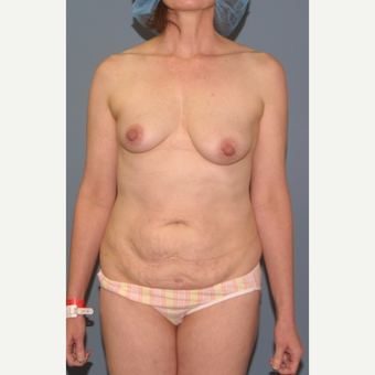 55-64 year old woman treated with Breast Lift before 3454379