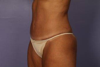 Tummy Tuck and liposuction after 687601