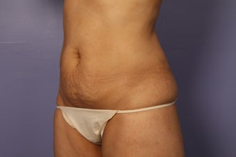 Tummy Tuck and liposuction before 687601