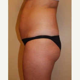 25-34 year old woman treated with Fat Transfer before 2612114