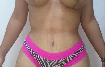 25-34 year old woman treated with Tummy Tuck after 2247793