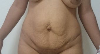 25-34 year old woman treated with Tummy Tuck before 2247793