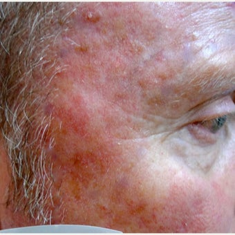 Extensive sun damage treated with Photodynamic Therapy before 1769752