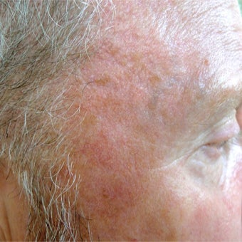 Extensive sun damage treated with Photodynamic Therapy after 1769752