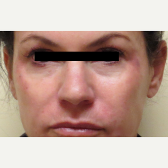 45-54 year old woman treated with Voluma after 3210801
