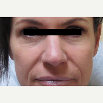45-54 year old woman treated with Voluma before 3210801