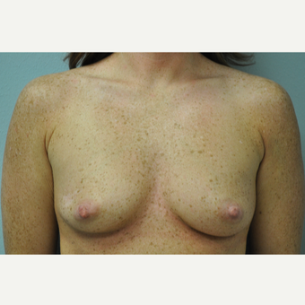 25-34 year old woman treated with Breast Augmentation before 3326984