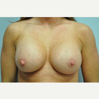 25-34 year old woman treated with Breast Augmentation after 3326984