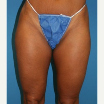 45-54 year old woman treated with Liposculpture before 2032309