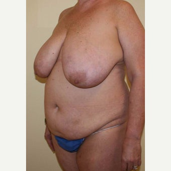 45-54 year old woman treated with Breast Reduction before 2484464