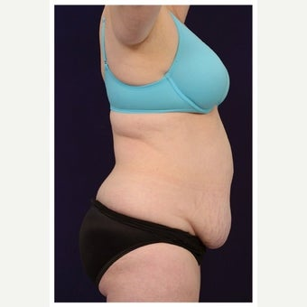 45-54 year old woman treated with Mini Tummy Tuck before 1567373