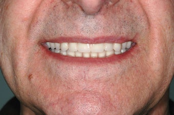 Male Received Dental Implants after 991300