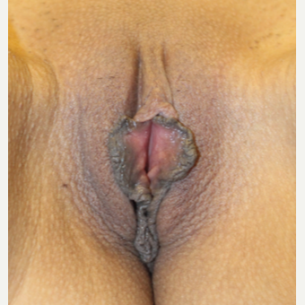 25-34 year old woman treated with Labiaplasty before 3692175