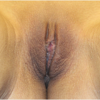 25-34 year old woman treated with Labiaplasty after 3692175