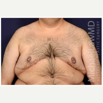 35-44 year old man treated with Male Breast Reduction