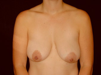 Breast Lift with Short Vertical Scar before 1050388