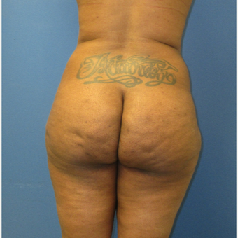 25-34 year old woman treated with Brazilian Butt Lift before 3725996