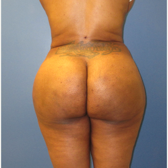 25-34 year old woman treated with Brazilian Butt Lift after 3725996