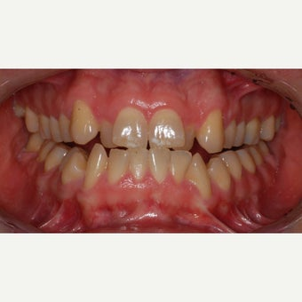 25-34 year old man treated with Invisalign before 2244718