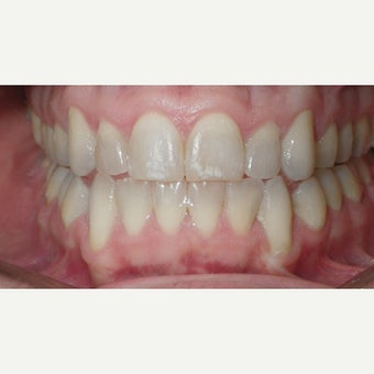 25-34 year old man treated with Invisalign after 2244718