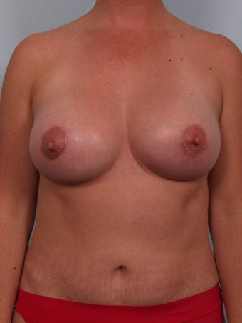 Breast Augmentation Revision after 699910