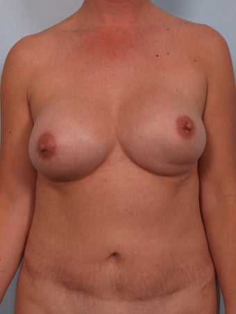 Breast Augmentation Revision before 699910