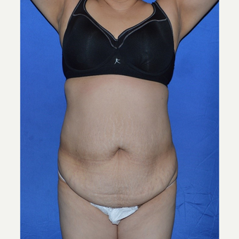 45-54 year old woman treated with No-Drain Tummy Tuck before 3655705